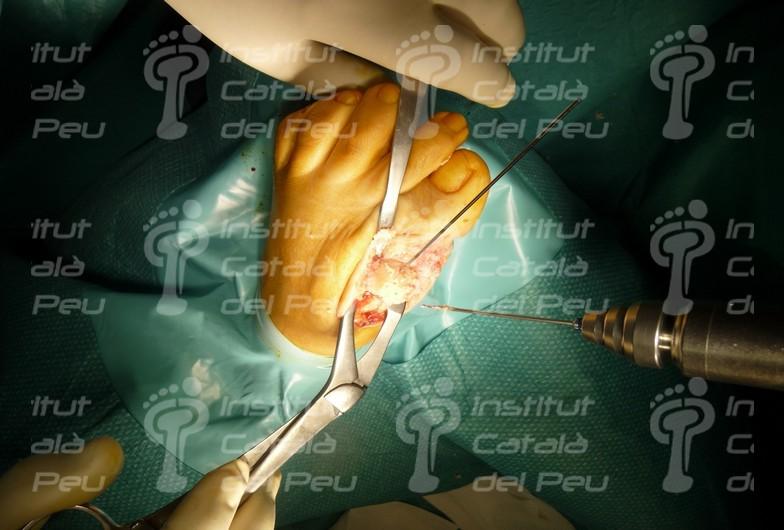 Ortopodología Ortopedia