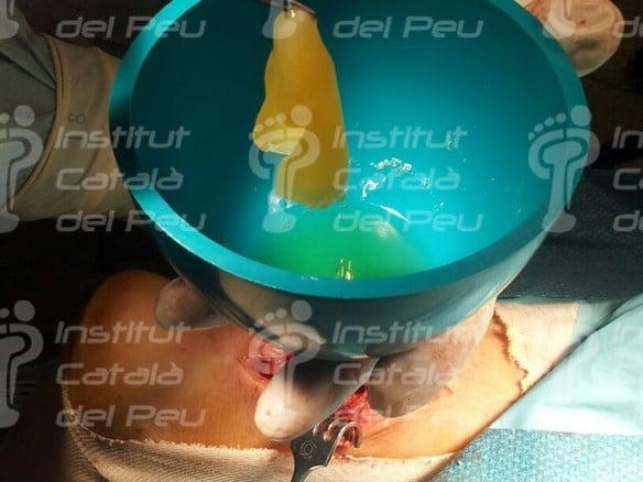 Reconstrucción del tendón de Aquiles. Aspectos claves de la cirugía.