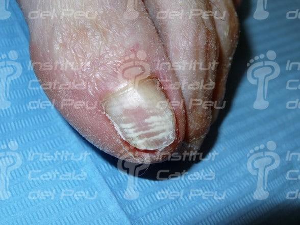 """La leuconiquia o """"uñas con manchas blancas""""."""