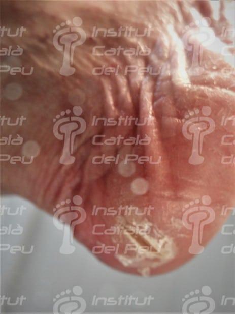 Grietas en el talón: Prevención, causas y tratamiento.