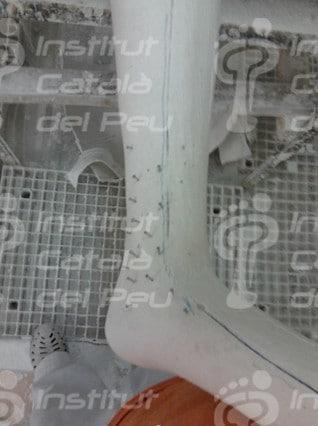 Confección de una férula AFO articulada