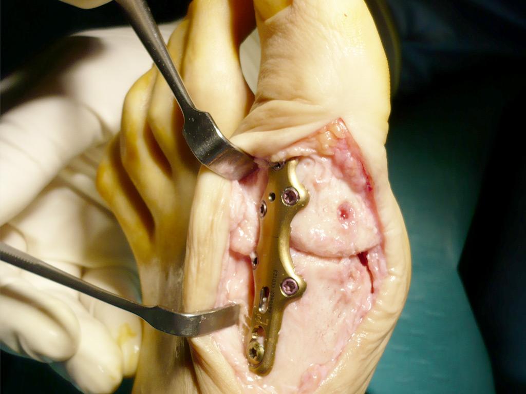 Cirurgia Podològica