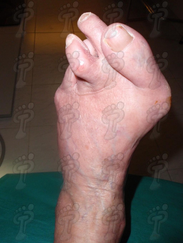 Generalidades sobre el pie reumático