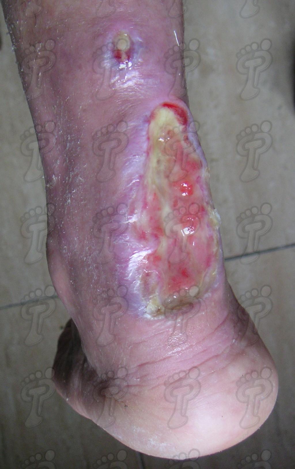 Consideraciones sobre el pie diabético