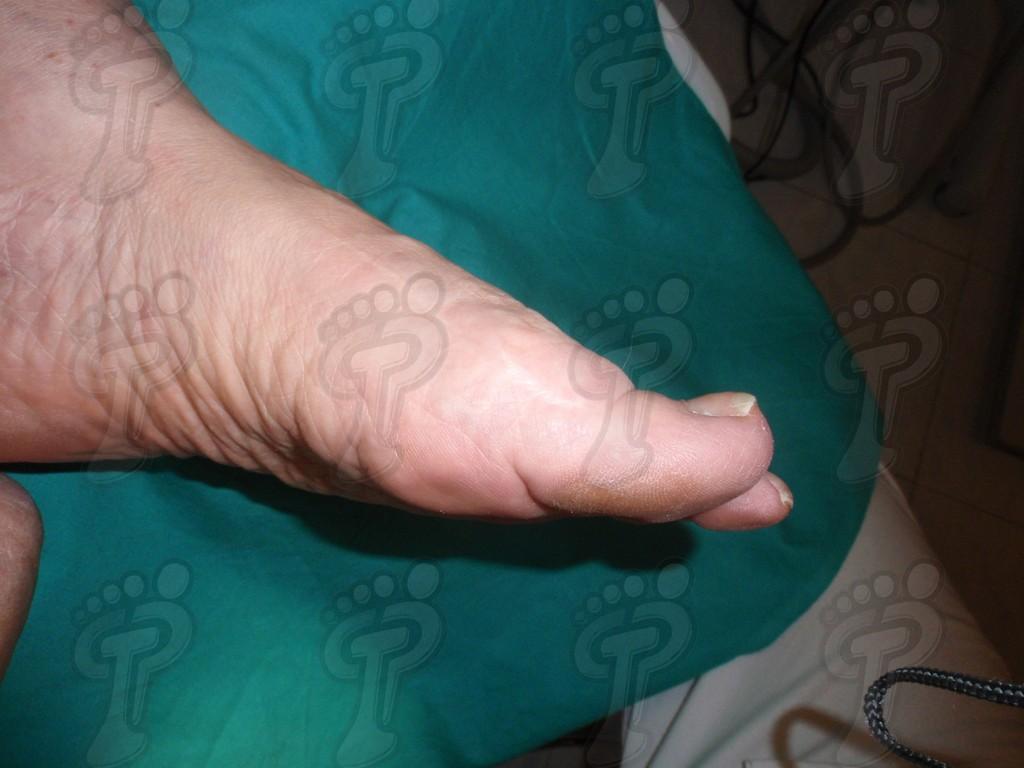 Hallux extensus: deformidad del primer dedo en el plano sagital