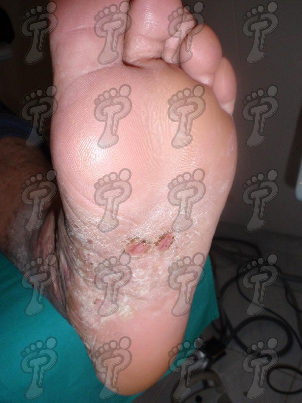 Псориаз: хроническое заболевание кожи