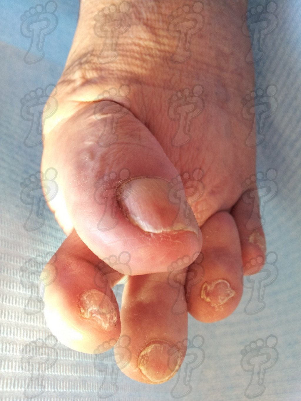 Hallux valgus: the most frequent structural alteration of the first radius