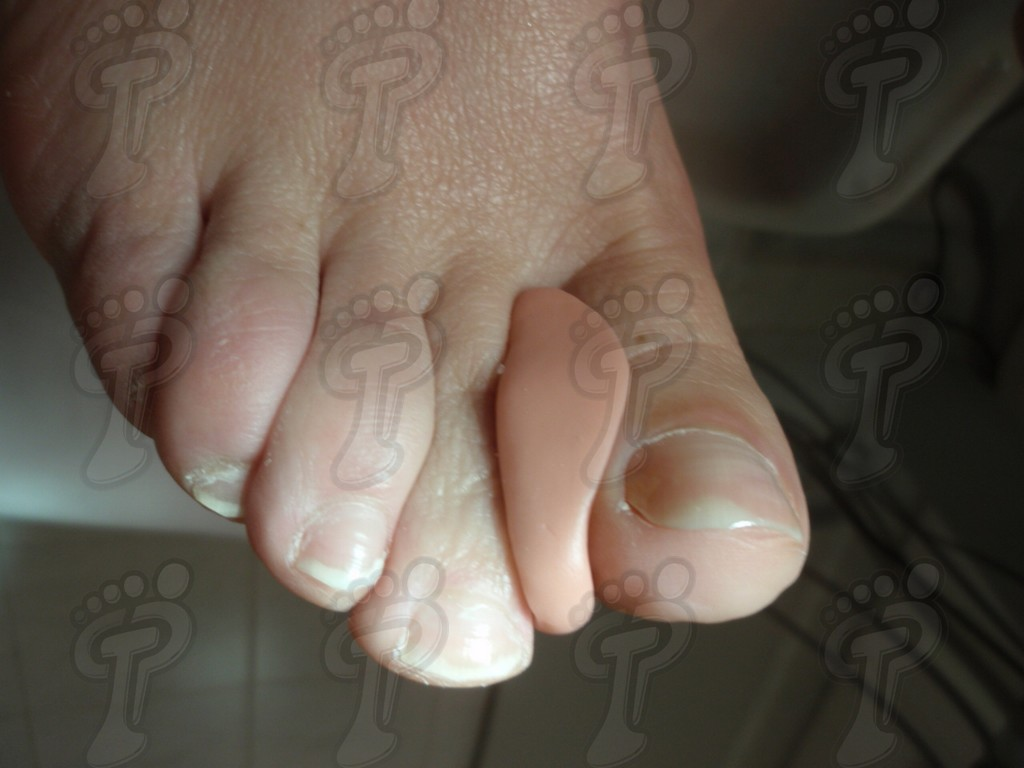 Aplicación de la ortesis de silicona en el pie