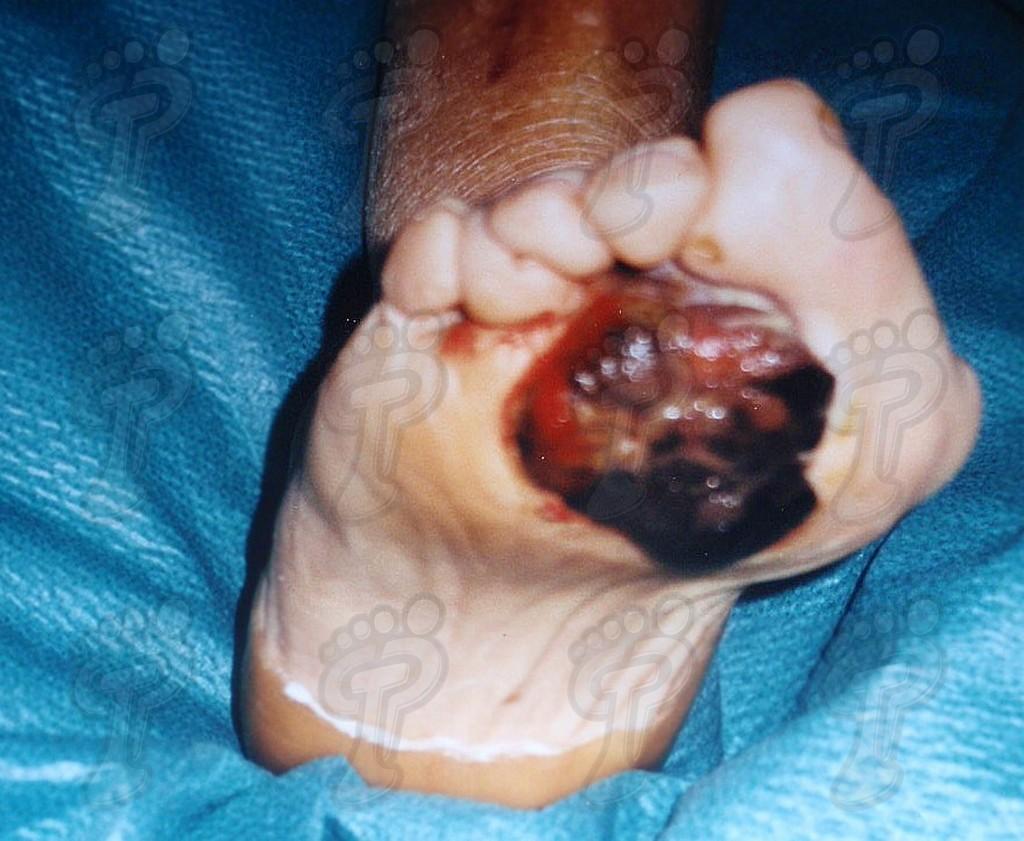 Злокачественные опухоли на ноге