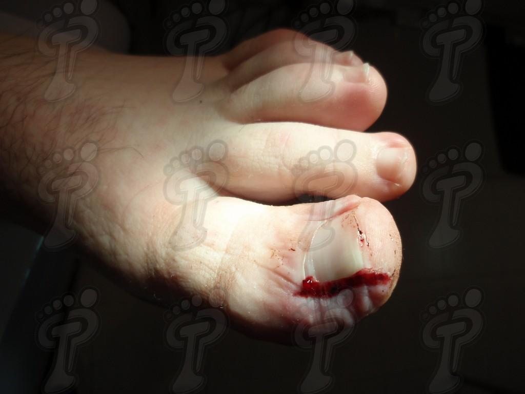 Cirugía ungueal mínimamente invasiva