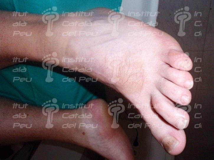 Витилиго или лейкодерма. Определение, диагностика и лечение данного кожного заболевания