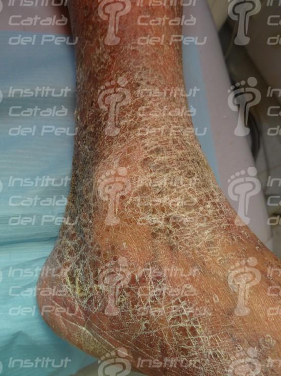 La xerosis: sequedad severa de la piel