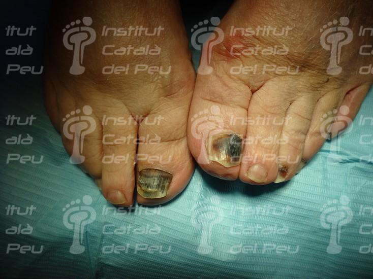 Подногтевая гематома. Причины и лечение.