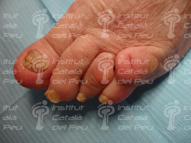 Перекрещивающийся пятый палец. Основные положения.