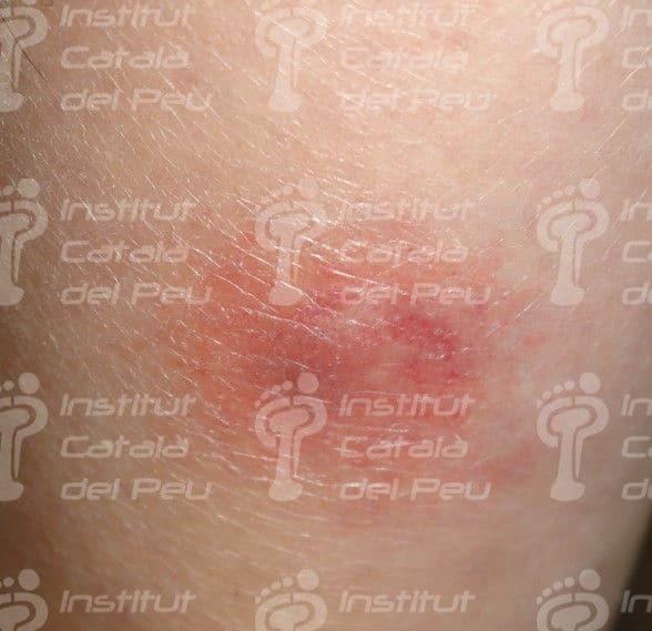 El eritema nodoso. Lesión de hipersensibilidad frente a antígenos.