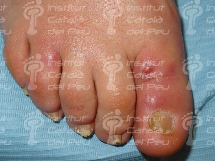 Alteraciones Dermatológicas