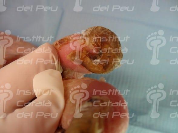 La onicogrifosis o el aumento del grosor de las uñas.