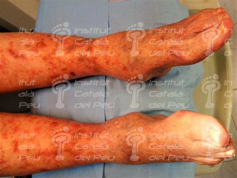 La Queratosis actínica. El pre-cáncer de piel más frecuente.