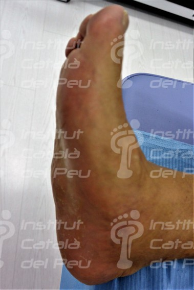 THE NEUROPATHIC ARTHROPATHY OR CHARCOT'S FOOT.