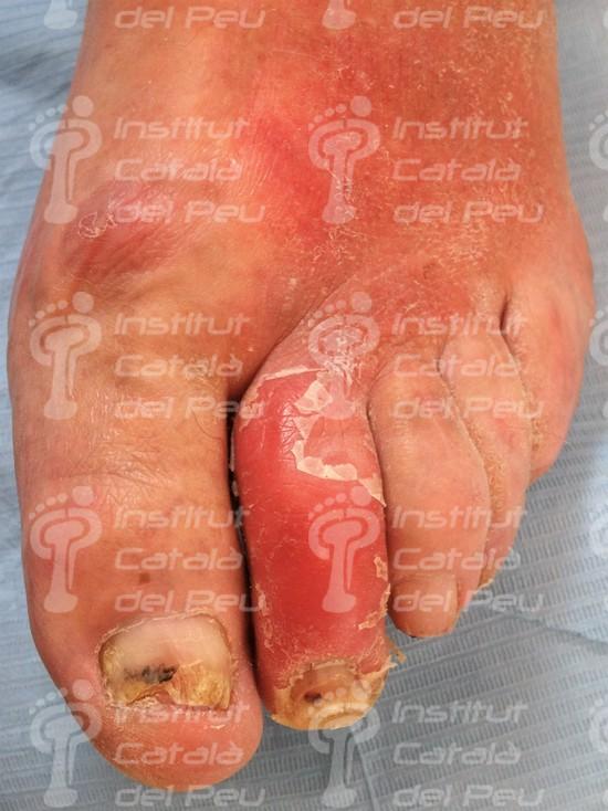 La celulitis: Causas, síntomas y tratamiento.