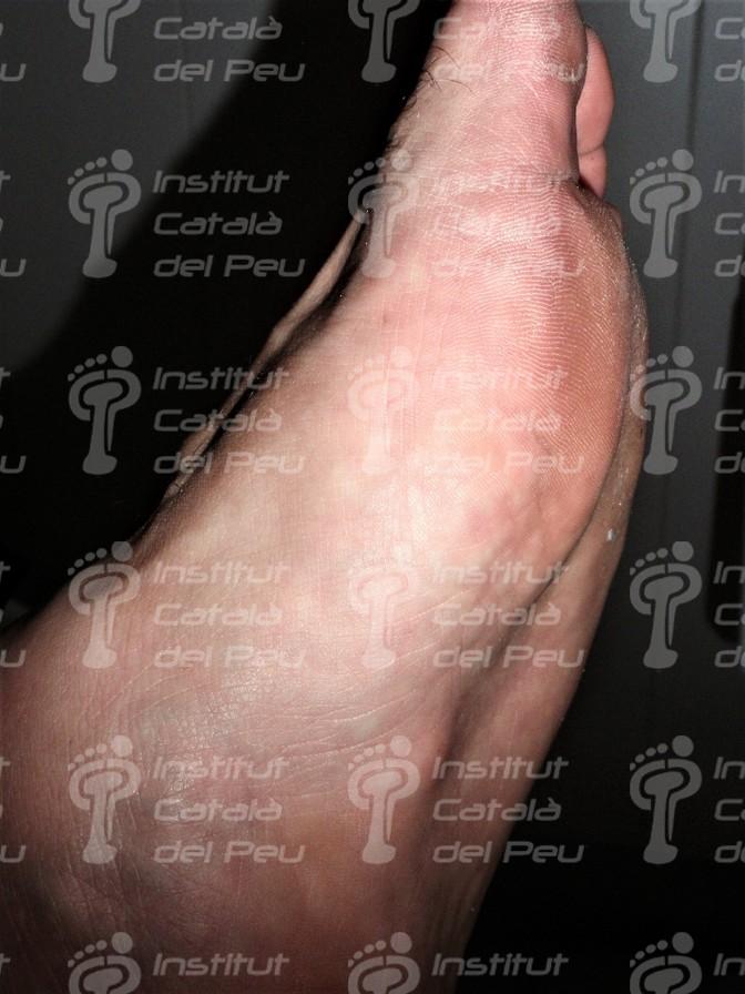 La Enfermedad de Ledderhose o Fibromatosis plantar