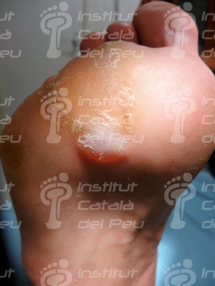 L'èczema dishidròtic. Clínica i tractament