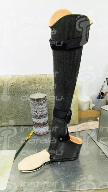 PROSTHESIS FOR CHOPARD'S AMPUTATION